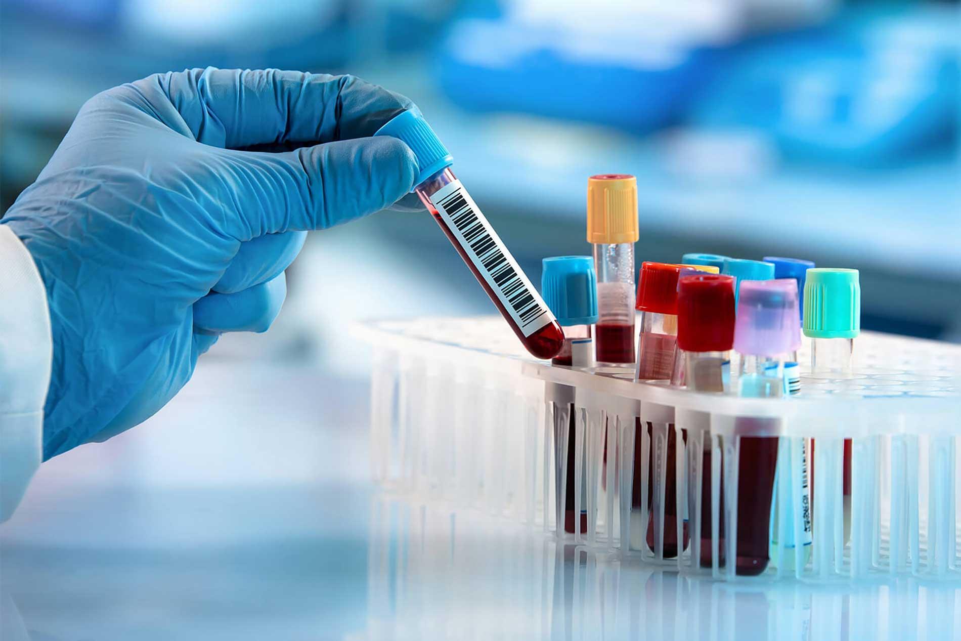 Test sierologici COVID-19