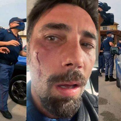 Agressione Brumotti - Inviato Striscia la Notizia